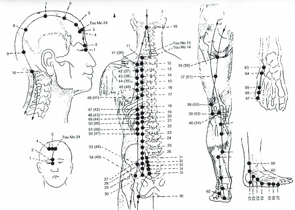 agopuntura senza aghi biorisonanza firenze LaboratorioAura